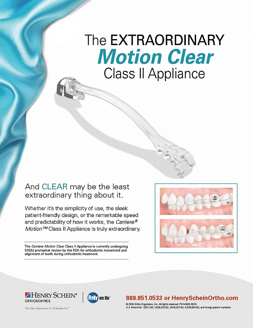 Carriere Motion Clear Class II Appliance